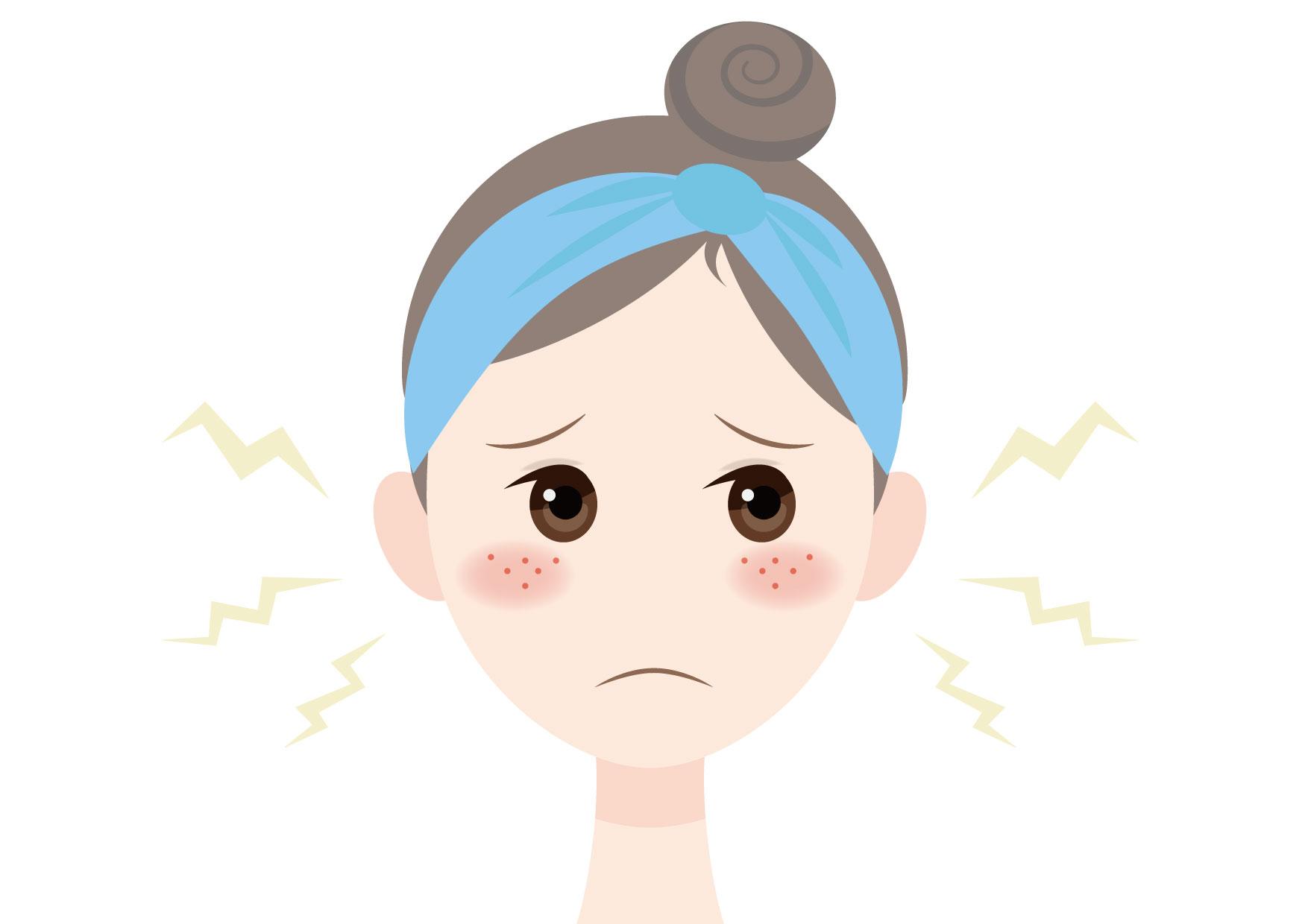 可愛いイラスト無料|女性 顔 肌荒れ ニキビ − free illustration Female face rough skin acne