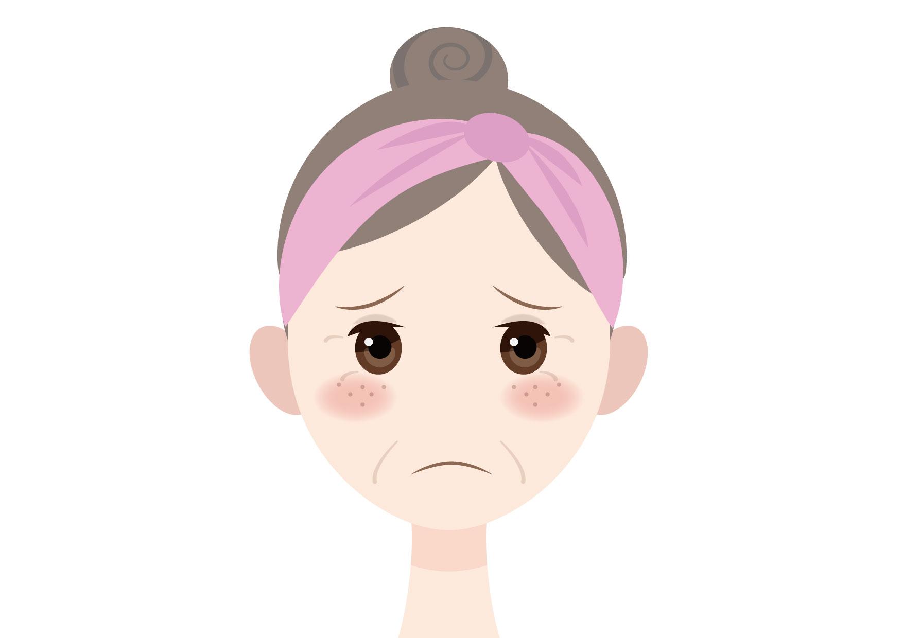 可愛いイラスト無料|女性 顔 くすみ そばかす 40代 50代 − free illustration Female face freckles 40s 50s
