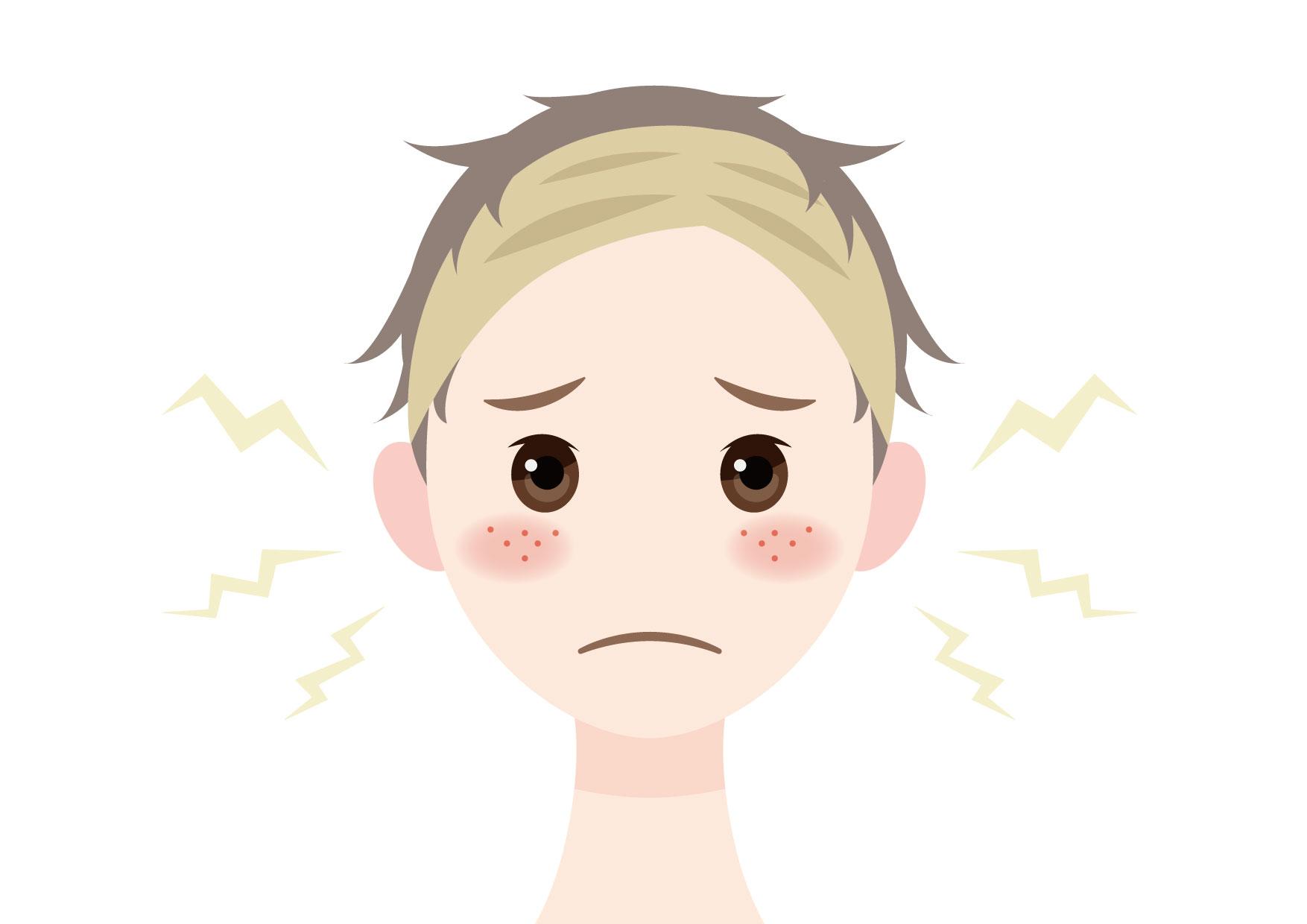 可愛いイラスト無料|男性 顔 肌荒れ ニキビ − free illustration Male face rough skin Acne